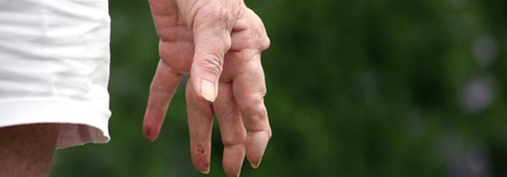 Chiropractic Waukesha WI Arthritis Flareup